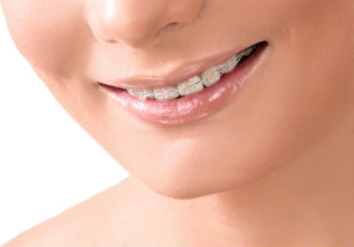 TC dental group Invisalign