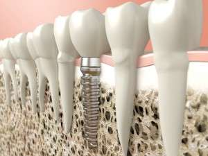 TC Dental Dental implant
