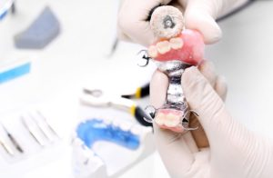 TC-dental-crown-and-bridges