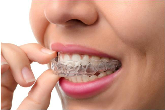 The pros and cons of  Invisalign aligners