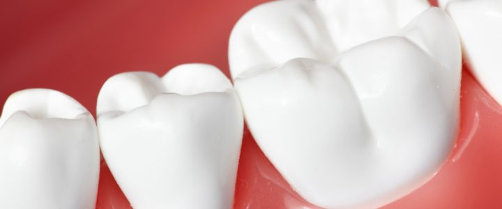 Healing tooth cavities naturally