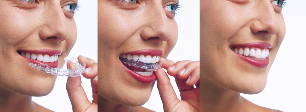 TC Dental Invisalign®teeth straightening