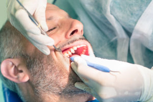 TC-Dental-Group-Upper_Mt_Gravatt-Perio-Treatment-Brsibane