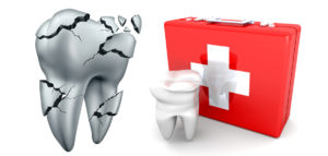 Upper Mt Gravatt Dental Emergency