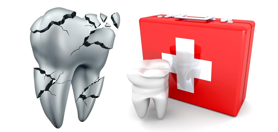 Upper Mt Gravatt Dental Emergency