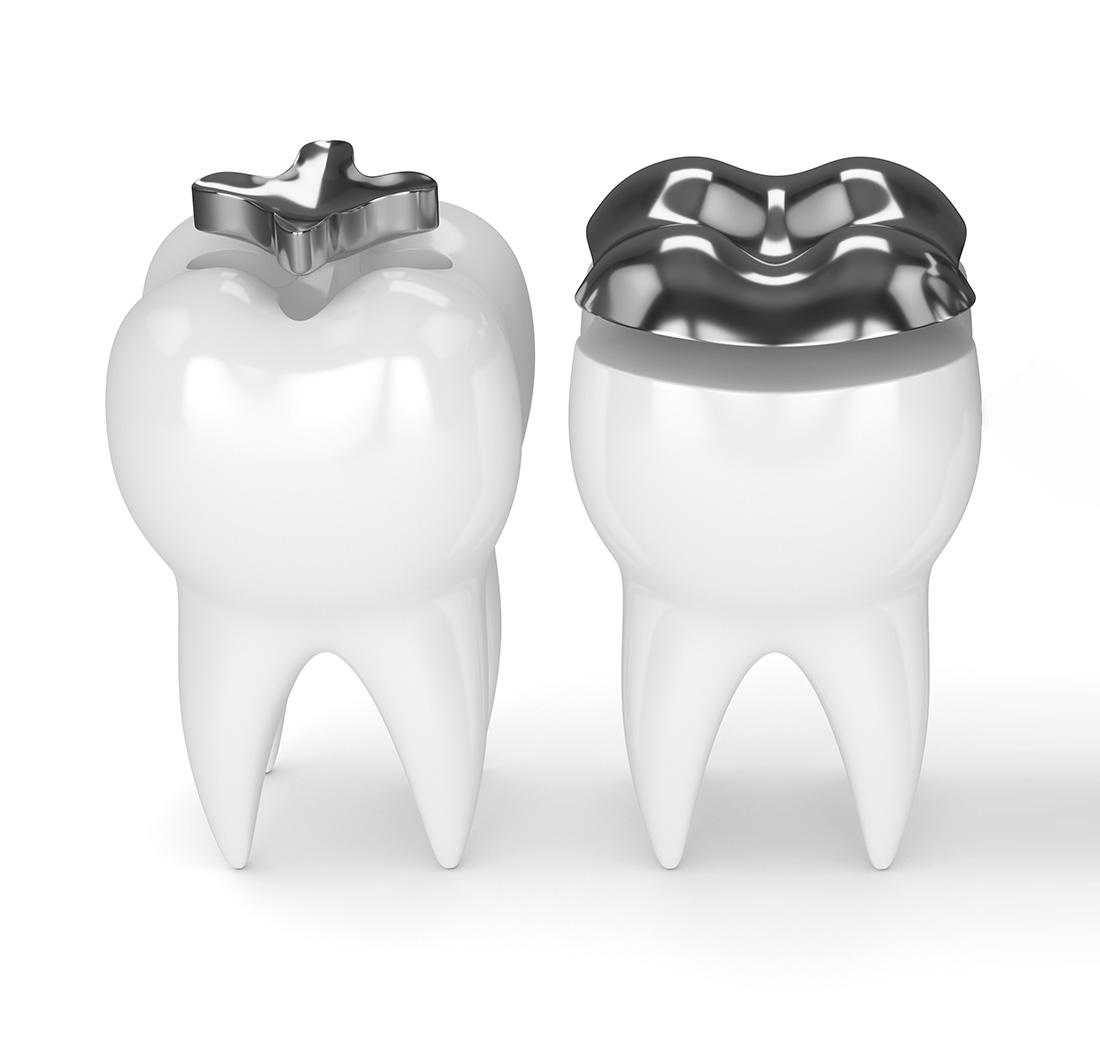 inlay-onlay-TC-dental-group-upper-mt-gravatt-dentist