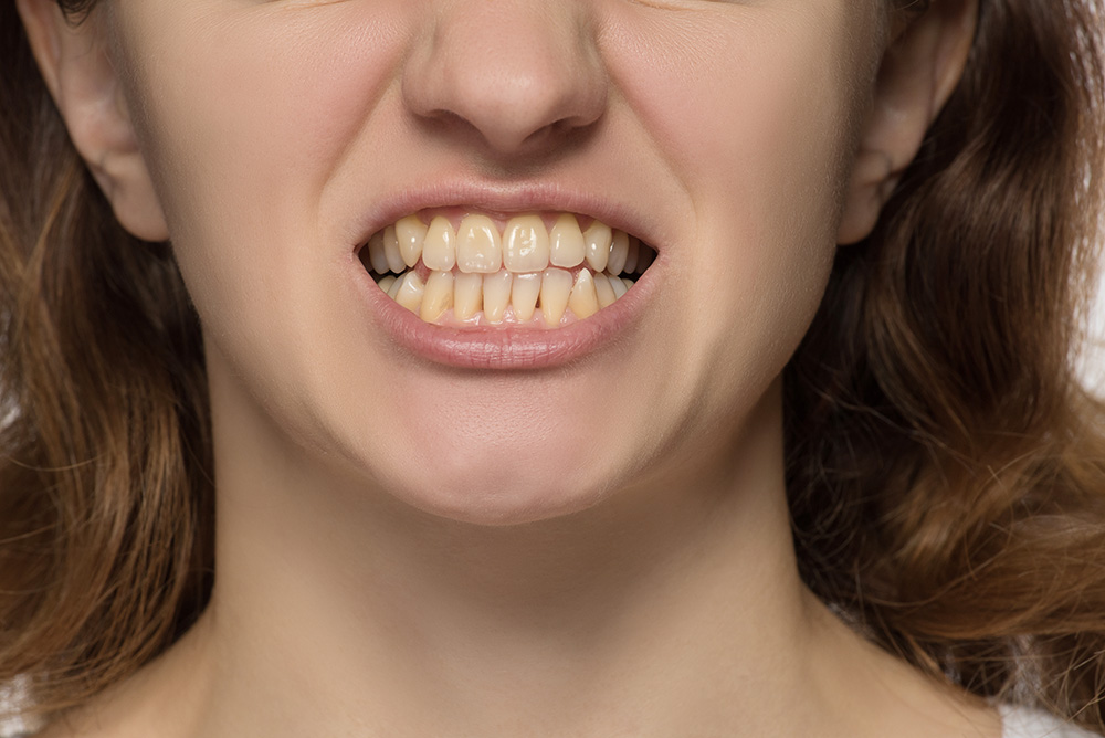 TC-dental-tooth-erosion-causes