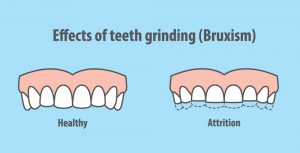 TC-dental-Teeth_grinding_bruxism_effects