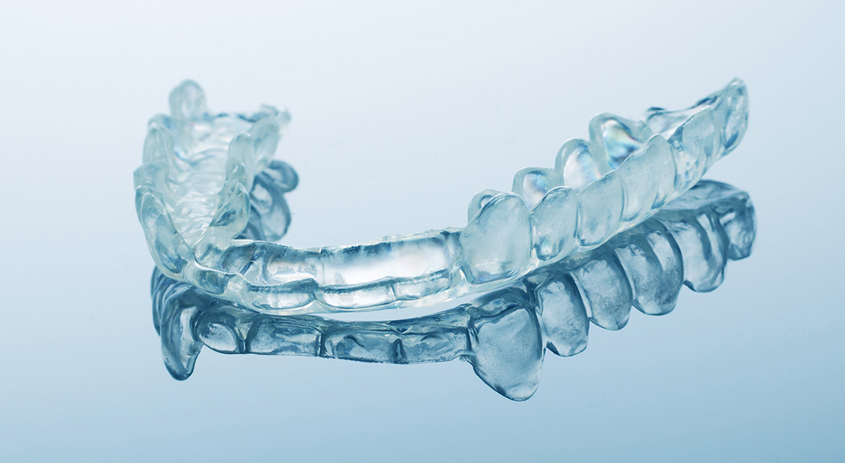 When do I need a mouthguard for teeth grinding?