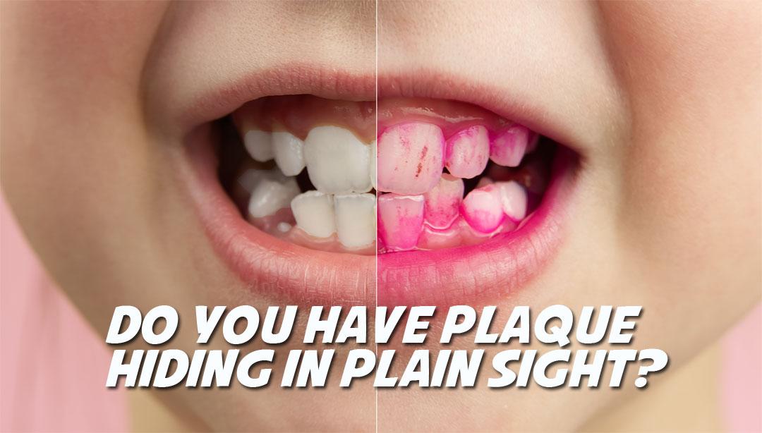 TC-Dental-plaque-disclosing-tablets-gel-toothpaste-caption