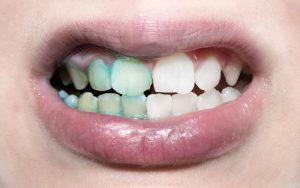 dental-plaque-tc-dental