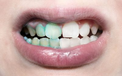 The difference between healthy & unhealthy dental plaque